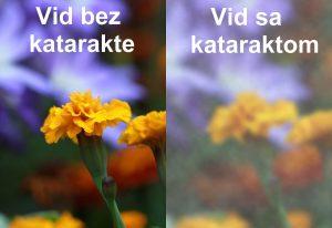Vid sa i bez katarakte