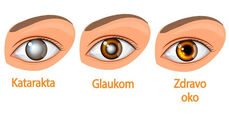 Katarakta i glaukom